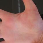 Neurodermitis - Handinnenfläche